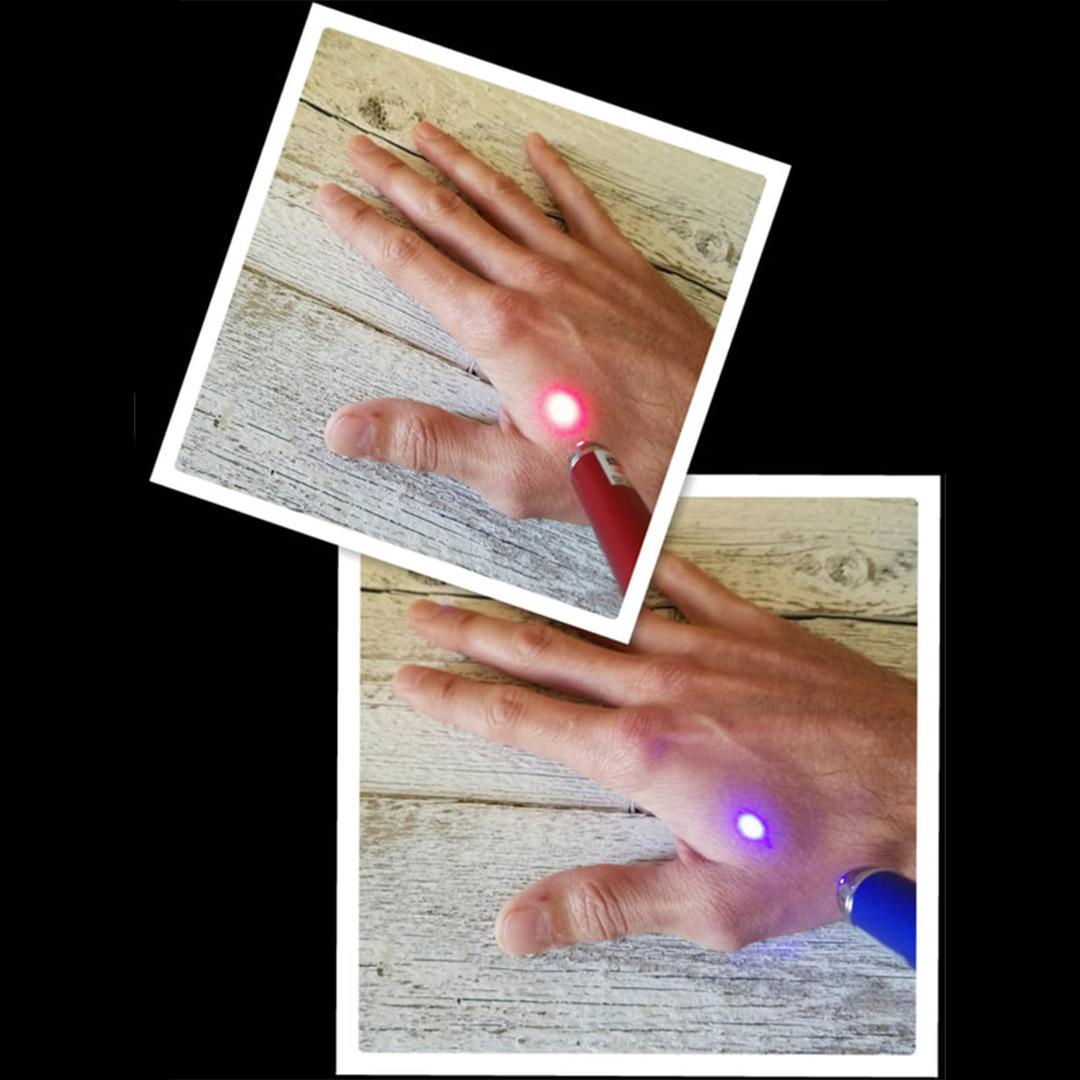 Needle Free Acupuncture - Indigo Healing Acupuncture